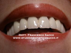 Centro Implantologia Dr. Francesco sacco